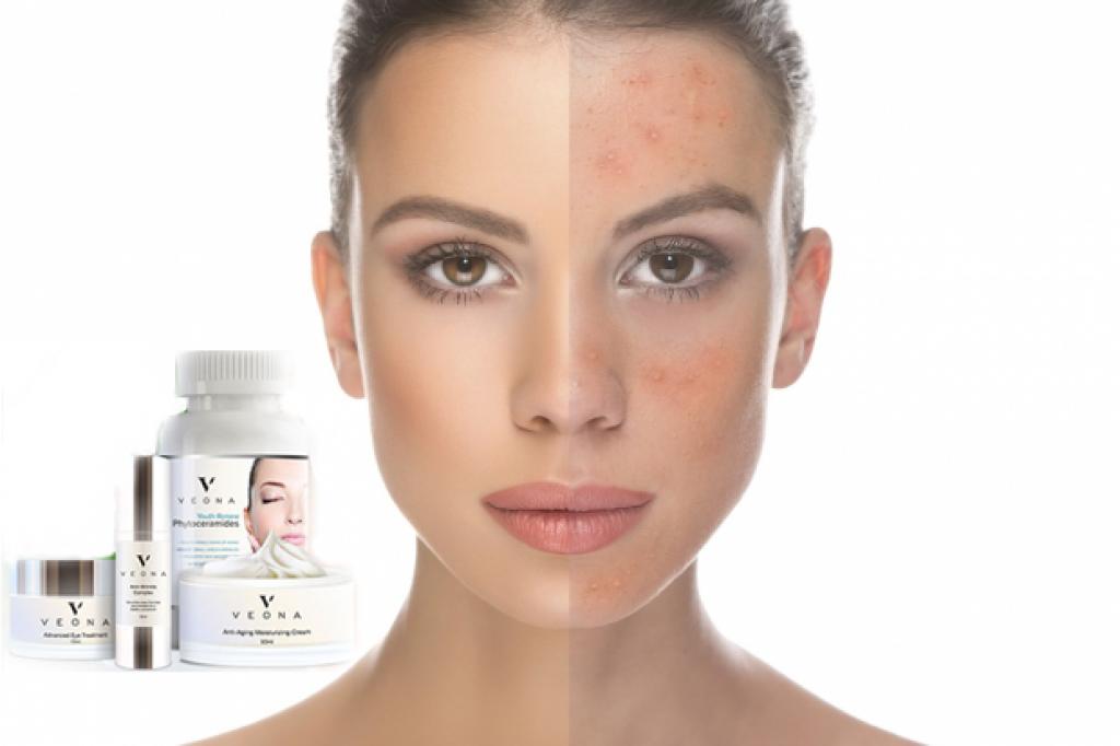 Rabatte auf Veona Produkte - die Wundertäter, die Ihre Haut regenerieren
